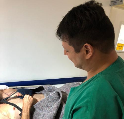 Cirurgia inovadora na FCecon preserva braço de paciente mesmo com amputação de ombro