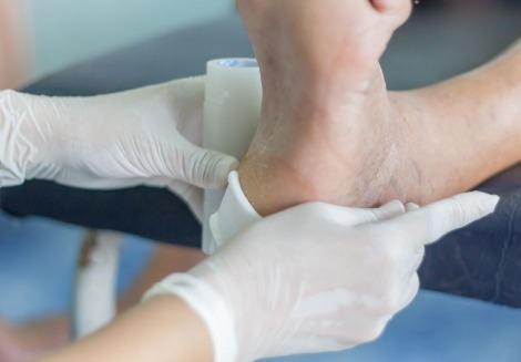 Prefeitura de Manaus e MPAM lançam sistema para prevenir e tratar pé diabético