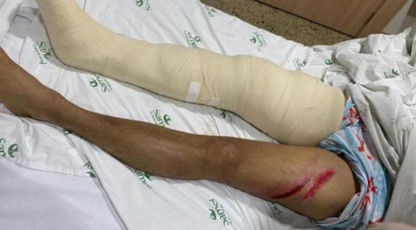 Josué Neto fraturou a perna direita em acidente de Jet Ski, no Tarumã