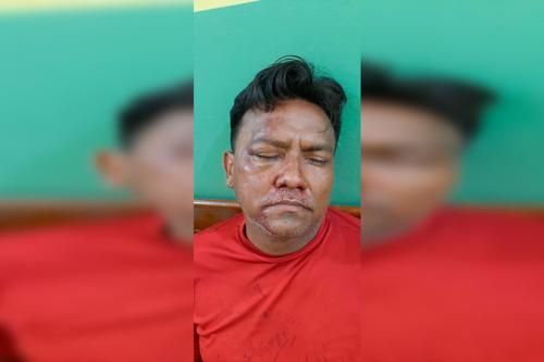 Agressor de 'Pai Amado' é preso em Nhamundá