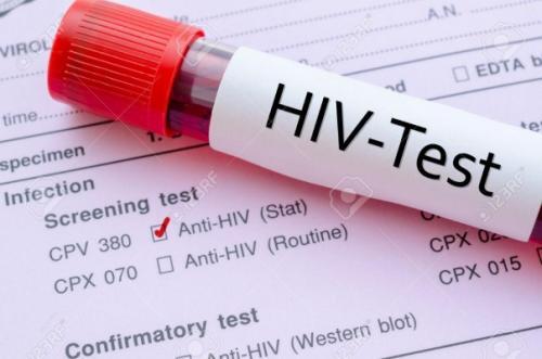 Campanha contra aids tem foco na ampliação de testes para diagnóstico